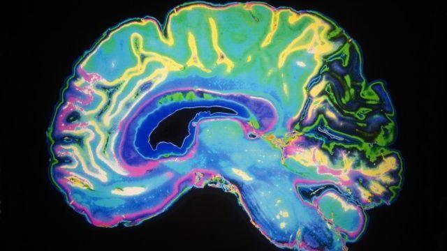 Beynimizi yanıldan 5 amil